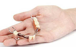 Несъемные зубные протезы: виды