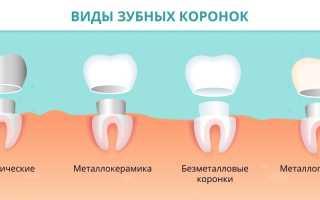 Зубные коронки ставят на цемент