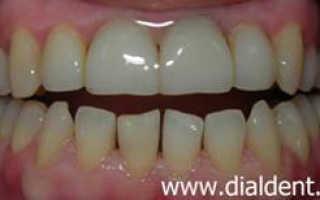 Выравнивание зубов с помощью пломб