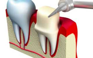 Виды зубных коронок и протезов