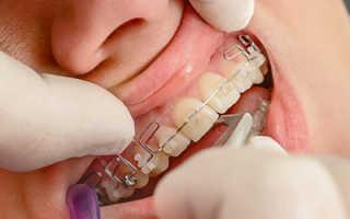 Пластинки для выравнивания зубов — Пластины на зубы