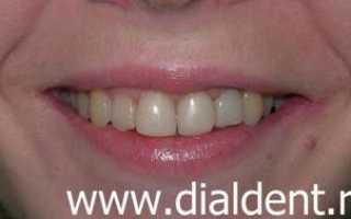 Что лучше реставрация зуба или брекеты