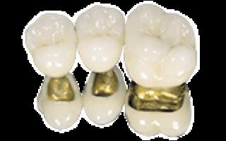 Коронки на зубы, виды, особенности установки в Москве