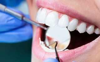 Способы выравнивания зубов без брекетов; лечение зубов
