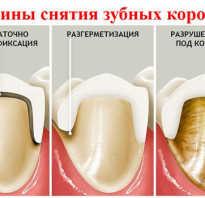 Болит зуб под коронкой при надавливании