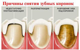 Как убрать зубную боль под коронкой
