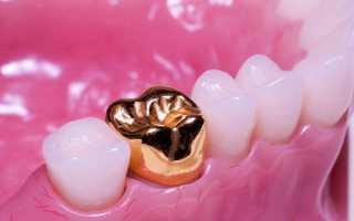 Зубные протезы и коронки из золота