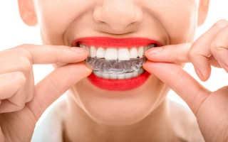 Безбрекетное выравнивание зубов элайнерами Star Smile в Туле