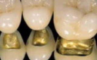 Что лучше сдвоенная коронка или две коронки по отдельности? — Протезирование зубов