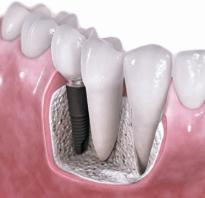 Что делать если проглотил коронку от зуба