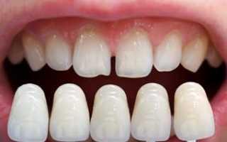 Реставрация зубов в германии