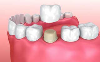 Изготовление зубных коронок