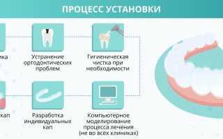Какие бывают капы для выравнивания зубов