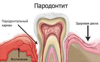 Если пародонтит обязательно удалять зубы