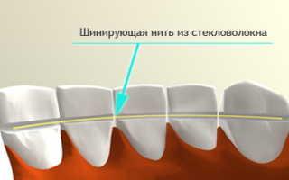 Шинирование зубов при пародонтите и пародонтозе в Москве