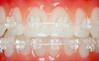 Выравнивание зубов керамические брекеты