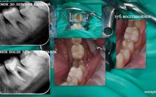 Реставрация жевательных зубов самара