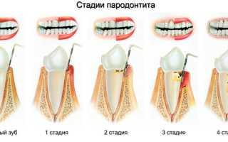 Зубы с пораженным пародонтитом