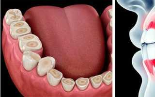 Реставрация зубов при бруксизме