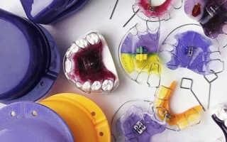Особенности установки и ношения пластин для выравнивания зубов