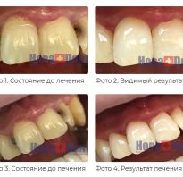 Что такое световая реставрация зубов