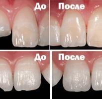 Реставрация цвета зубов до и после