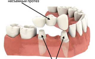 Изготовление зубных протезов коронок