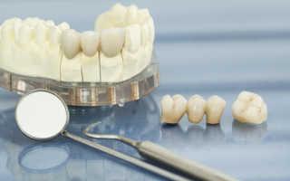 Реставрация передних зубов при истирании