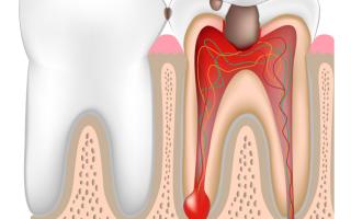 Что делать если опухли и болят десна, как лечить маргинальный периодонтит?