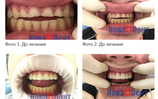 Коронки и виды коронок для зубов