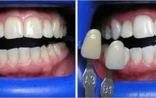 Реставрация зуба стоимость в перми