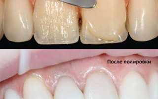 Художественная реставрация зубов прозрачность