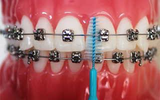 Как чистить зубы при лечении брекетами: советы, вопросы и ответы
