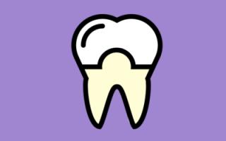 Выравнивание передних зубов у взрослых с помощью коронок