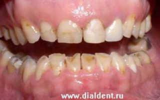 Художественная реставрация верхних зубов