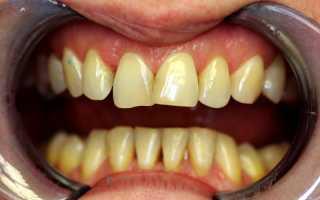 Какие зубные коронки качественнее
