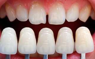 Реставрация скола винира на переднем зубе в день обращения