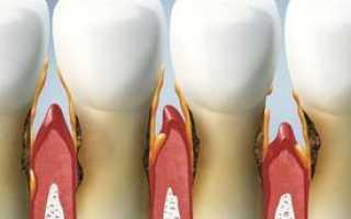 Методы лечения пародонтита протезирование