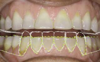 Реставрация зубов штифт время