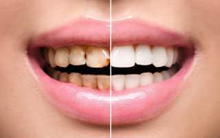 С чего начать реставрацию зуба
