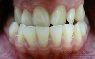 Операция на челюсти для исправления прикуса до и после
