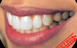 Эстетическая реставрация передних зубов пломба ceram x duo