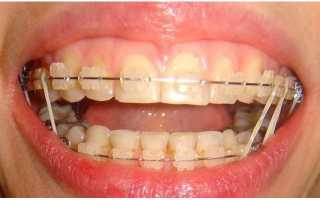 Резинки на зубы для исправления прикуса