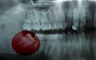Выравнивание зубов удаление зуба