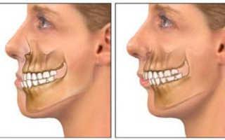 Исправление прикуса хирургическим путем — этапы проведения