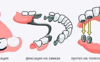 Зубные протезы на телескопических коронках