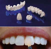Какие бывают зубные коронки и сколько они стоят