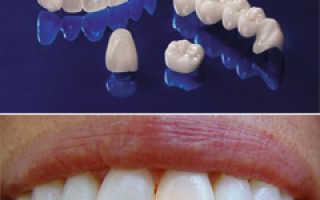 Зубные коронки как они одеваются