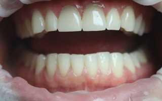Системное восстановление высоты всех зубов при повышенной стираемости