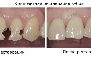 Реставрация зубов светоотверждающим и к